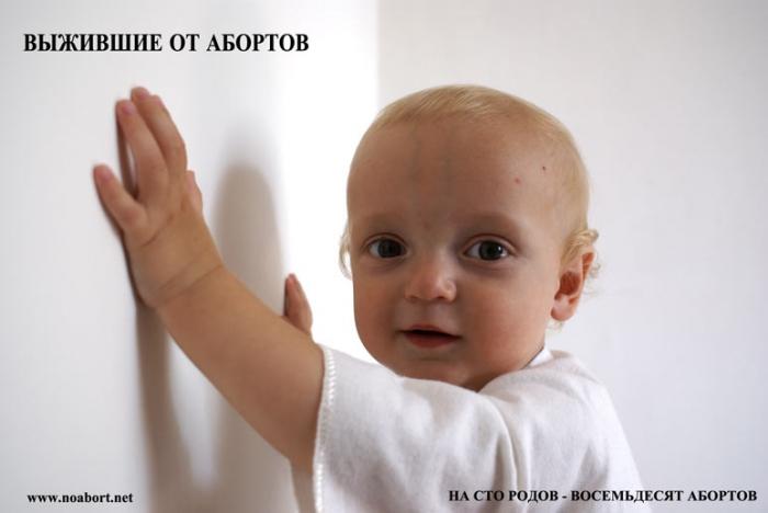 выжившие от абортов